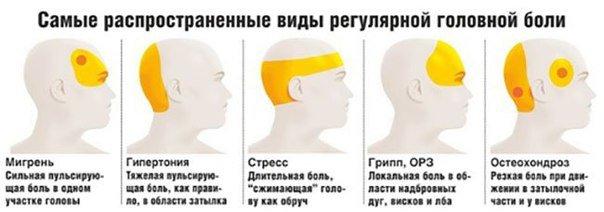 golovnaja bol - питание при головной боли, головная боль