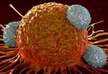 Остеопороз: Бифосфонаты защищают от рака матки. - рак, медновости