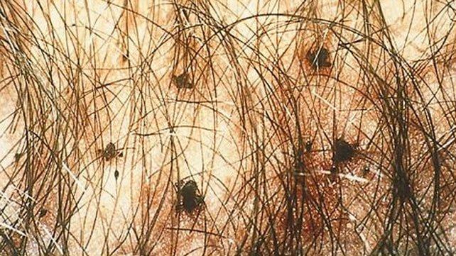 642x361_Pubic_Lice_Infestation-min - урогенитальные проблемы, сыпь, половые органы, половые инфекции