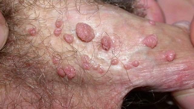 Сыпь на половых органах. Что это?