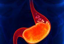 Как избавиться от изжоги в домашних условиях - изжога, желудок