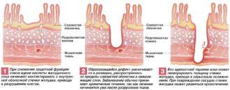 Как выглядит язва и каковы ее симптомы - язвенная болезнь, язва желудка, язва