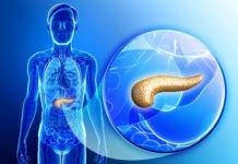 Острый панкреатит: Симптомы заболевания и диагностика - поджелудочная железа, панкреатит, лечение поджелудочной