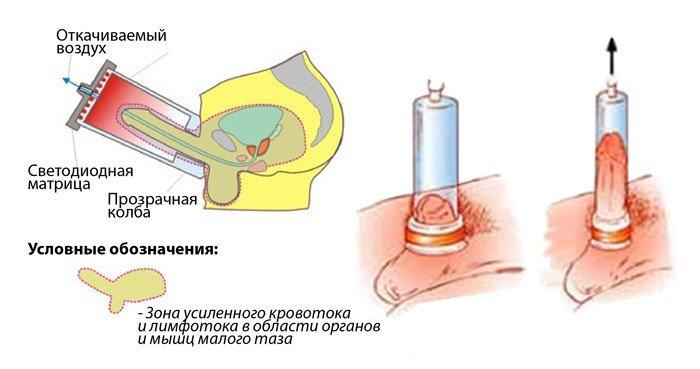 Импотенция на фоне простатита: может ли быть, после удаления простаты
