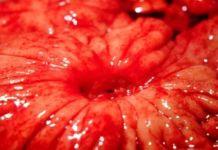 Язвенный колит: описание, причины и симптомы - язвенный колит, язва желудка, диагностика язвы, гастрит