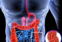 Список продуктов, полезных при гастрите и язве желудка - язва желудка, гастрит
