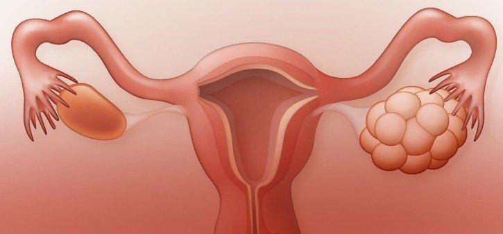 Болезни женских наружных органов у женщин
