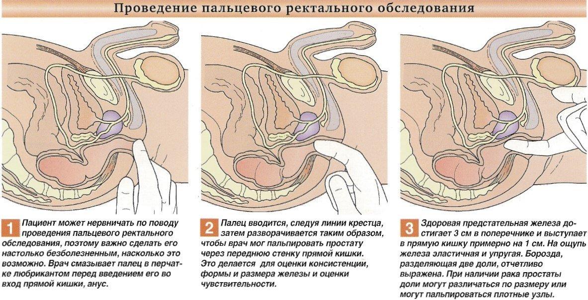 пальцевое ректальное обследование простаты диагностика простаты - урология, простатит, простата, предстательная железа, мужские проблемы
