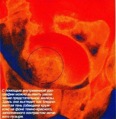 Как проводится диагностика простаты и ее лечение? - урология, простатит, простата, предстательная железа, мужские проблемы