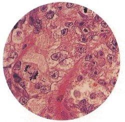 биопсия рака простаты - урология, простатит, простата, предстательная железа, мужские проблемы