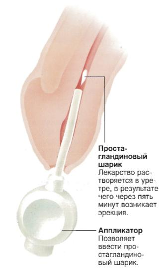 шарики в уретре для эрекции