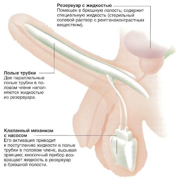 Средство от полипов в пенисе
