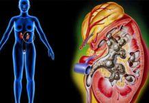 Желчная колика: ее причины и лечение. - желчнокаменная болезнь, желчная колика, болезни желчного пузыря