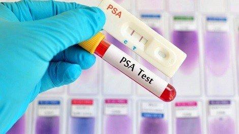 Как проверяют рак простаты - Лечение потнеции