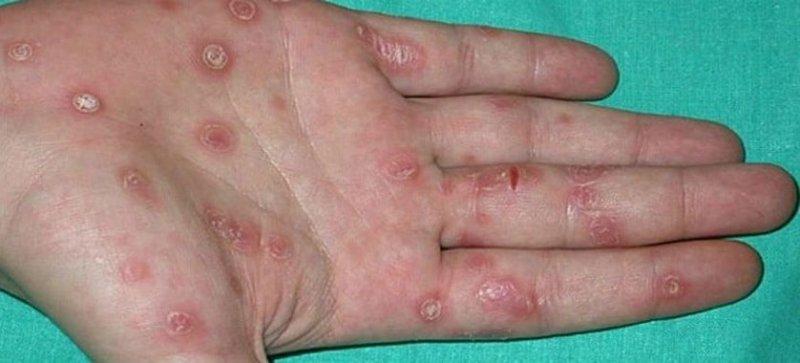 Начальная стадия сифилиса –  каковы симптомы?
