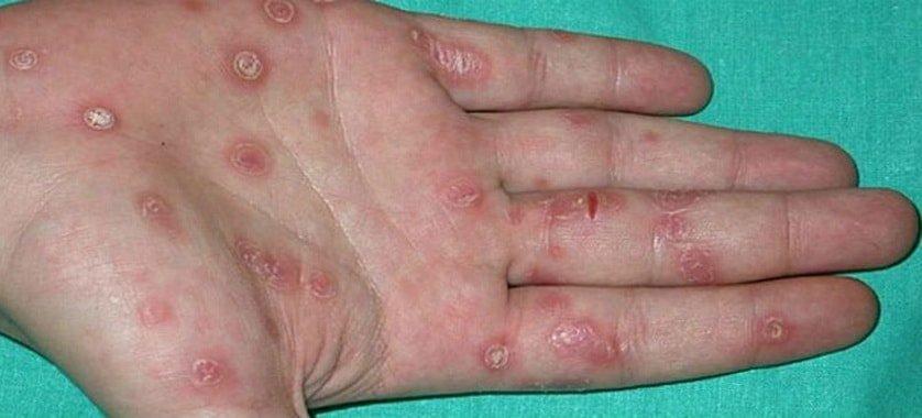 Tverdyj-shankr-foto-na-ruke-min - сифилис, половые инфекции