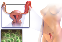 Цервицит: что представляет собой, каковы причины и симптомы заболевания. - урогенитальные проблемы, секс, половые инфекции, женские болезни, беременность