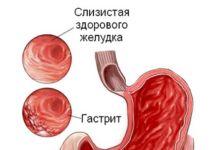 Язвенный колит: Основные методы диагностики и лечения. - язвенный колит, язва, питание при язве, гастроэнтерология