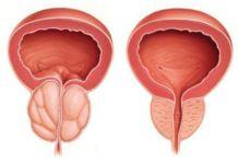 Внимательный взгляд на мужское здоровье и мужские проблемы - секс, мужское здоровье, мужские проблемы
