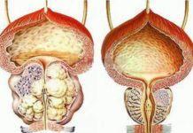 Фимоз у мужчин - что это такое и как лечить? - урология, урогенитальные проблемы, мужские проблемы