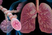 Что такое астматический статус: как проявляется и что делать? - заболевания органов дыхания, астма