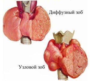 узловой и диффузный зоб - щитовидная железа, щитовидка, узлы, народные средства для щитовидки, зоб, гипотиреоз, гипертиреоз