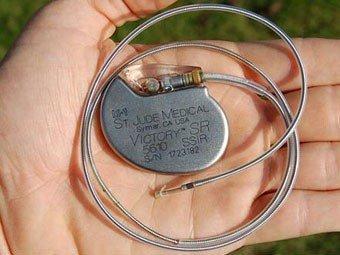 кардиостимулятор при нарушениях сердечного ритма - сердцебиение, сердце, аритмия