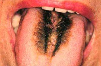 Как определить болезнь по языку? - язык, полезные советы