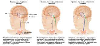 Расстройство функций щитовидной железы - щитовидная железа