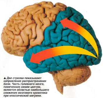 аура и кровоток при мигрени - невралогия, мигрень, головная боль