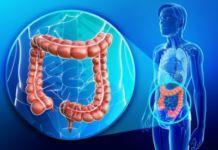 Полипы желчного пузыря: виды, симптомы, диагностика и лечение. - желчнокаменная болезнь, болезни желчного пузыря