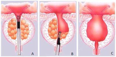 Трансуретральная резекция простаты: что это такое и зачем её делают? - простатит, простата, аденома простаты