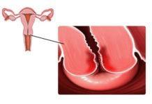 Эндометрит: как проводить диагностику и лечить заболевание - урогенитальные проблемы, половые инфекции, женские болезни, беременность