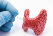 Тест ТТГ (стимулирующий гормон щитовидной железы) при гипотиреозе и гипертиреозе. Как сдавать и что он показывает? - гипотиреоз, гипертиреоз, болезни щитовидной железы