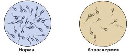 azoospermia-1-min
