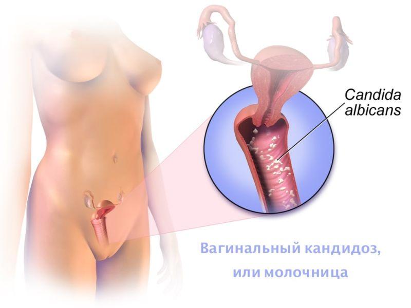 Вагинальный кандидоз (молочница): лечение
