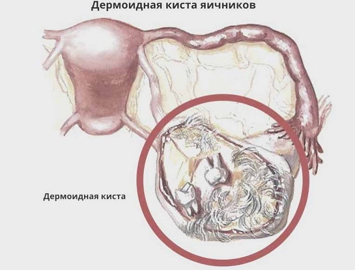 дермоидная киста