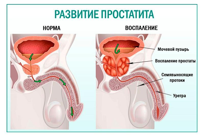 prostatit_888-min