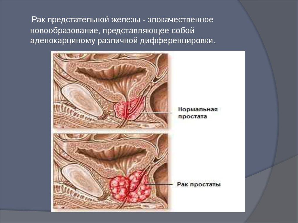 rak-prostaty-min
