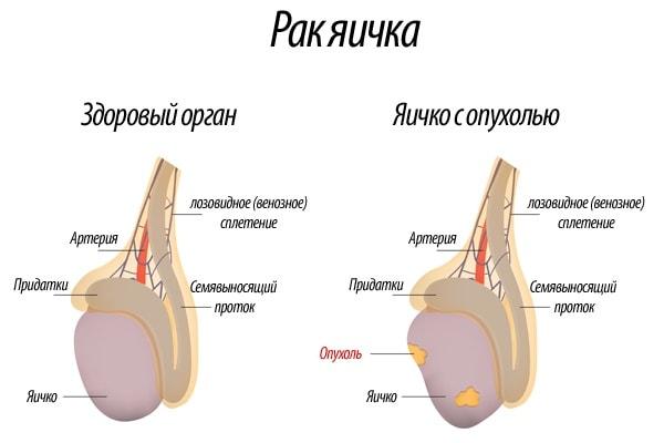 rak_yaitshka-min