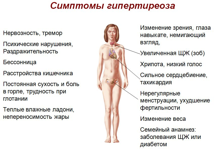 simptomy-i-lechenie-gipertireoza