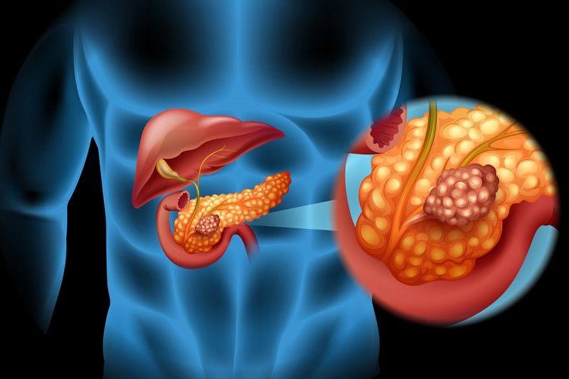 Грибы и бактерии кишечника играют роль в развитии рака поджелудочной железы.